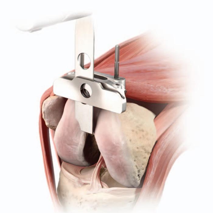 Schema illustrant l'étape de coupe fémorale durant une pose de prothèse totale de genou