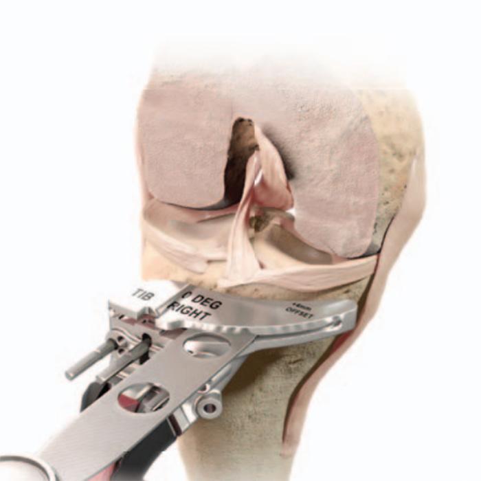 Coupe au niveau du tibia lors d'une opération de prothèse totale de genou