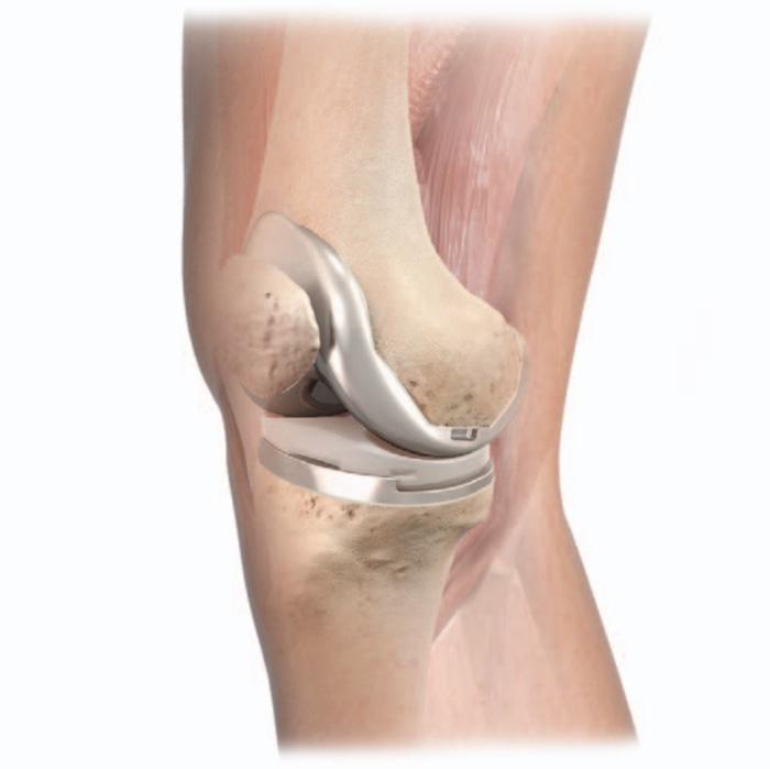 Prothèse de genou en place