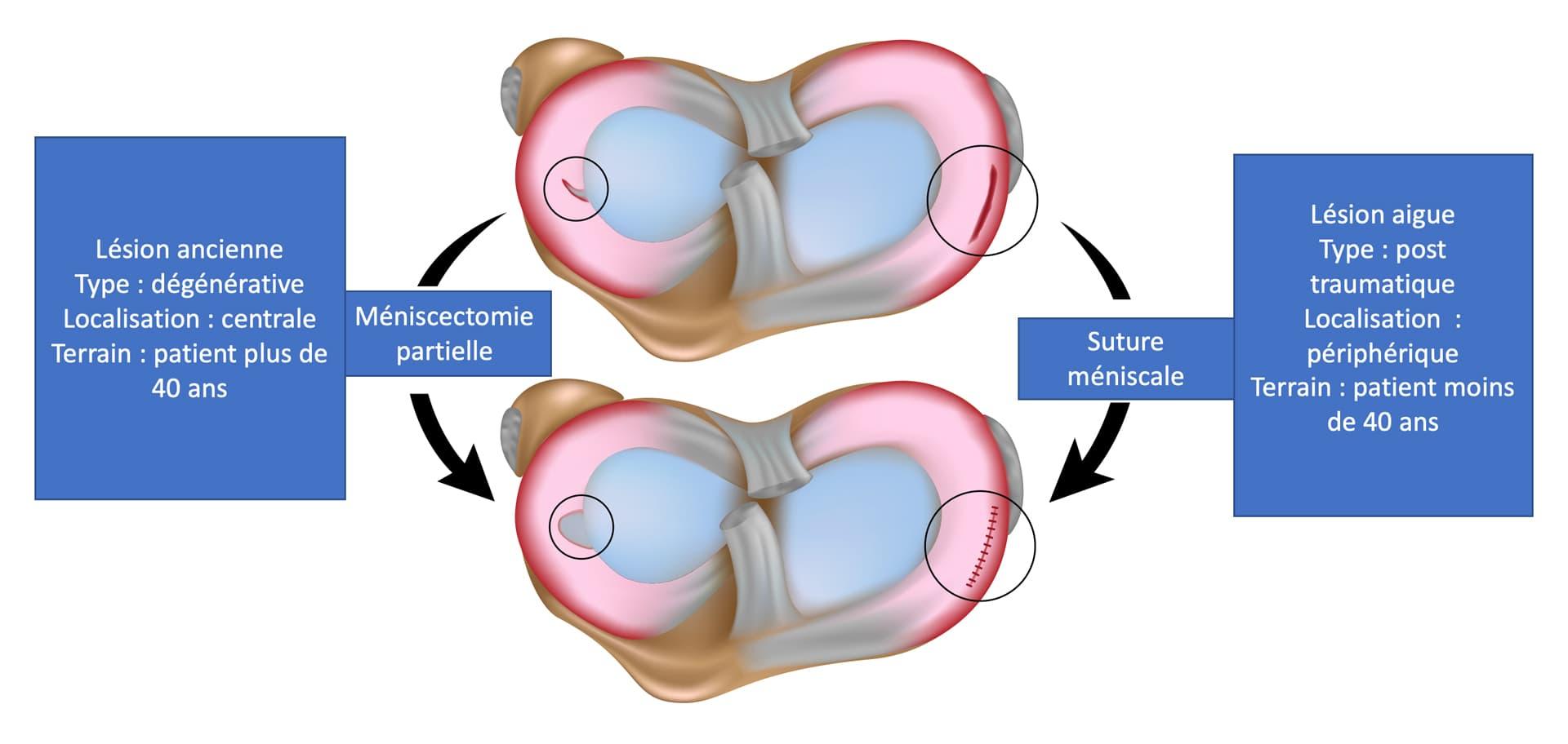 Schema expliquant les lésions méniscales suturables et non suturables