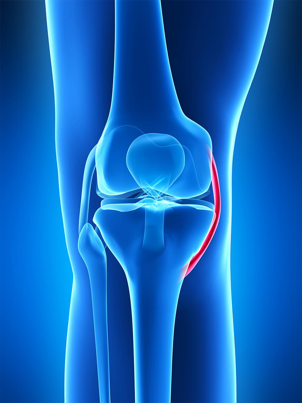 Schema décriptif du ligament collatéral médial du genou