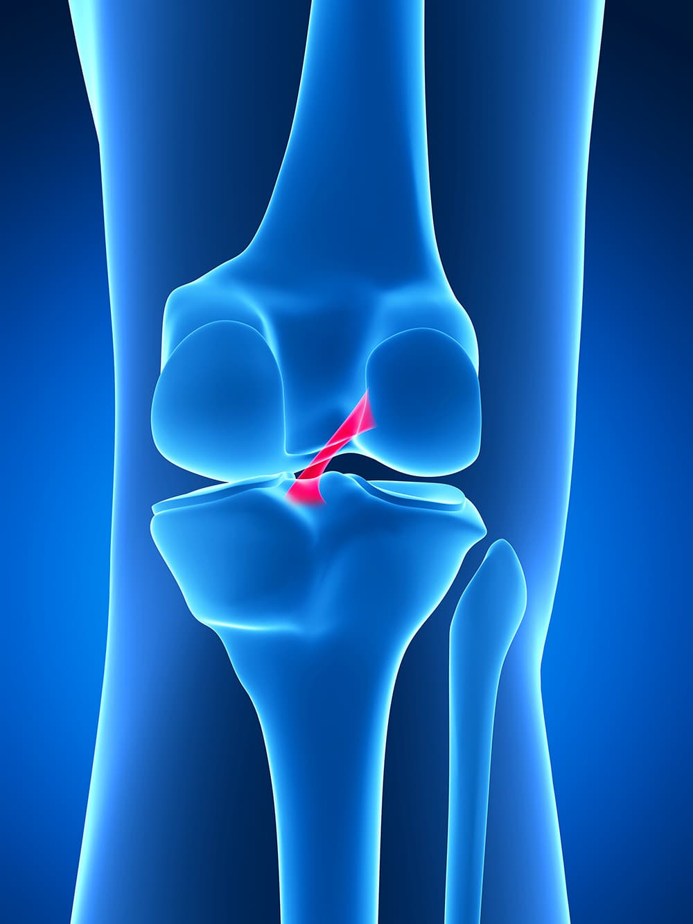Schema descriptif du ligament croisé antérieur