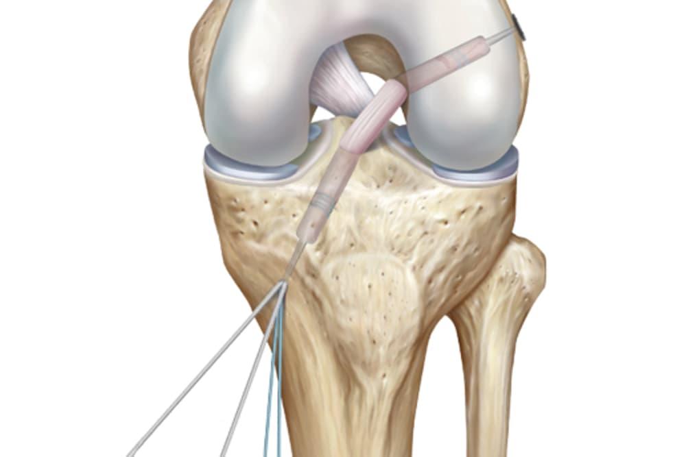 Mise en tension du nouveau ligament croisé