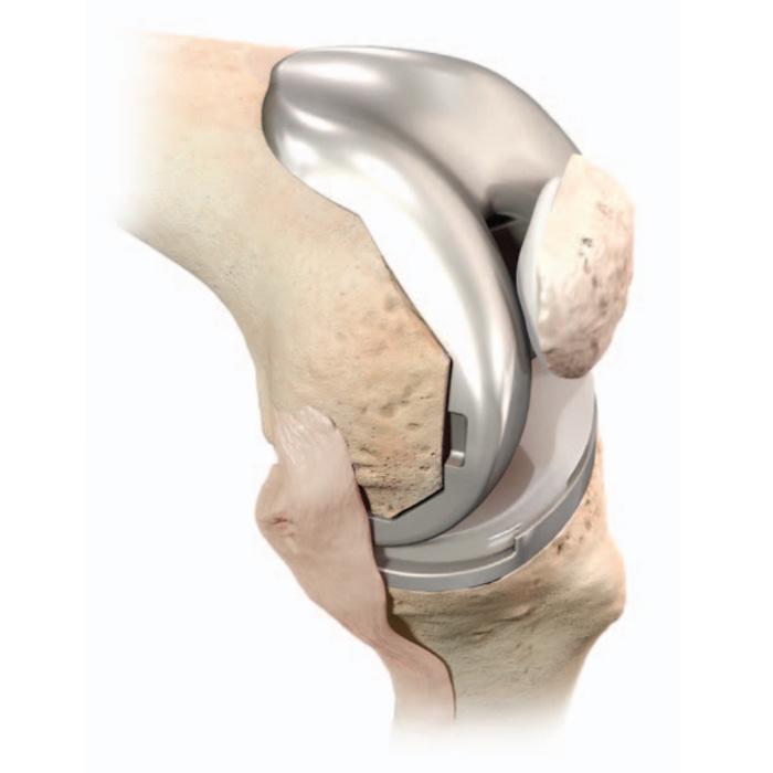 Mise en place de l'implant de genou