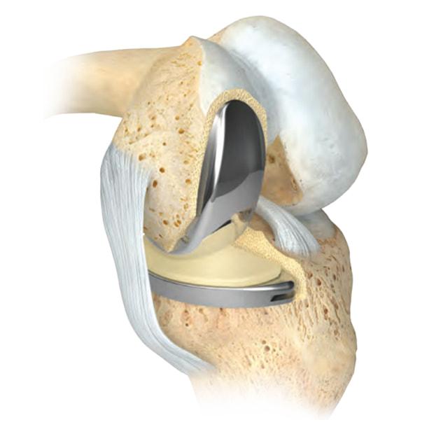 Résultat final avec la prothèse unicompartimentale