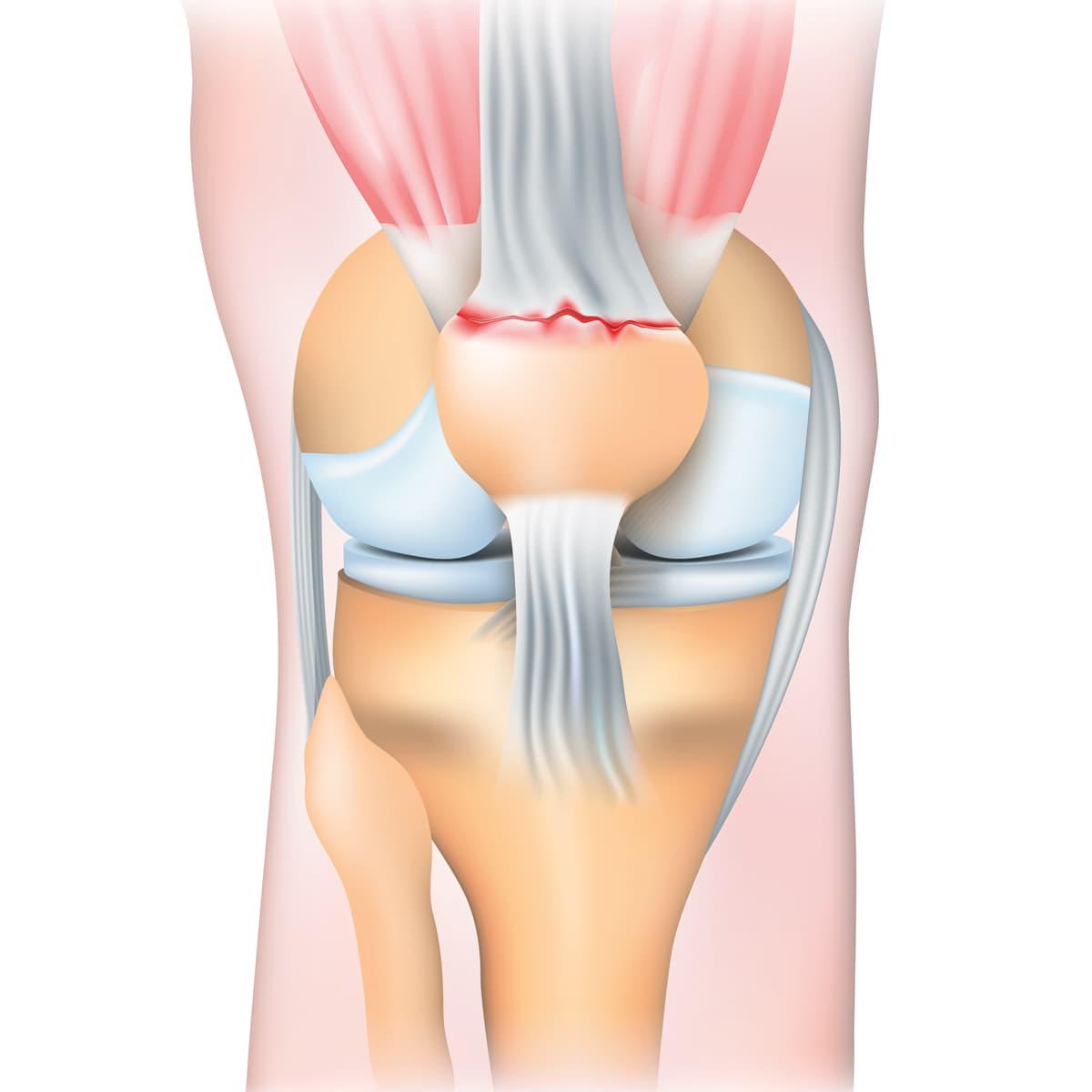 Schema illustrant la rupture du tendon quadriceps