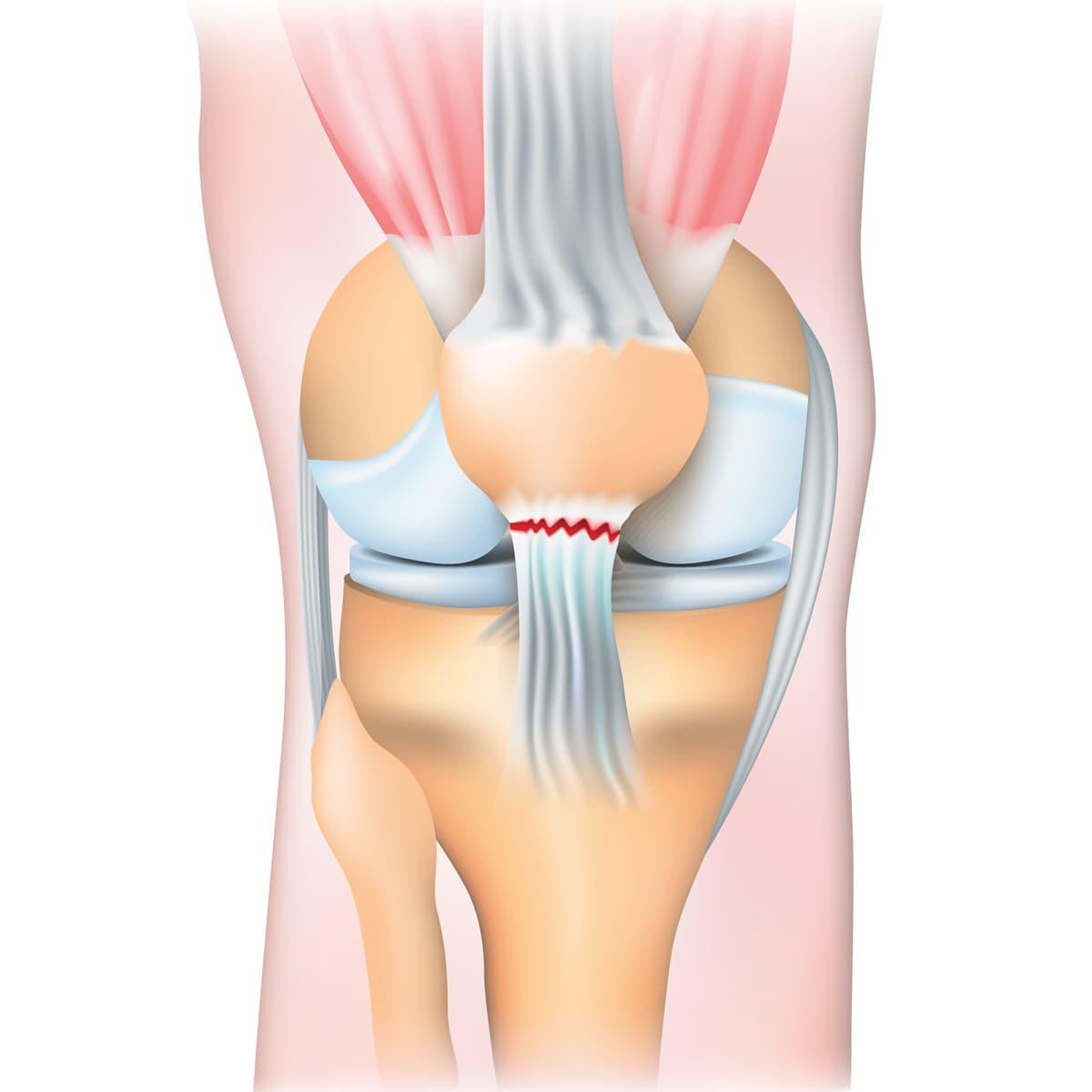 Schema illustrant la rupture du tendon rotulien