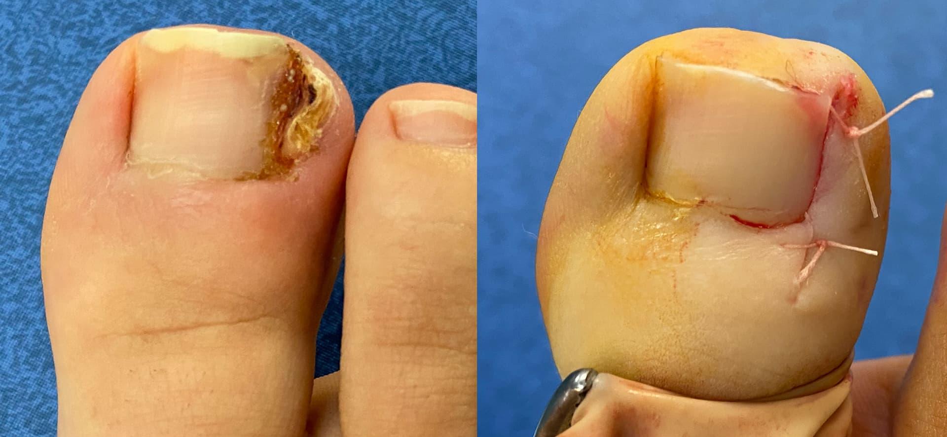 Résultat d'une chirurgie de l'ongle incarné